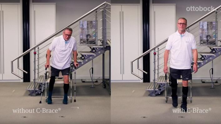Gait Cycle Comparison C-Brace vs. no orthosis